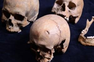 1994. aastal päästekaevamistel Tallinna võllamäelt leitud koljud. Esiplaanil on mehe kolju, mille otsmikuluul on näha surmaaegne vigastus