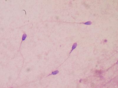 Mehe seemnerakud mikroskoobi all vaadatuna.